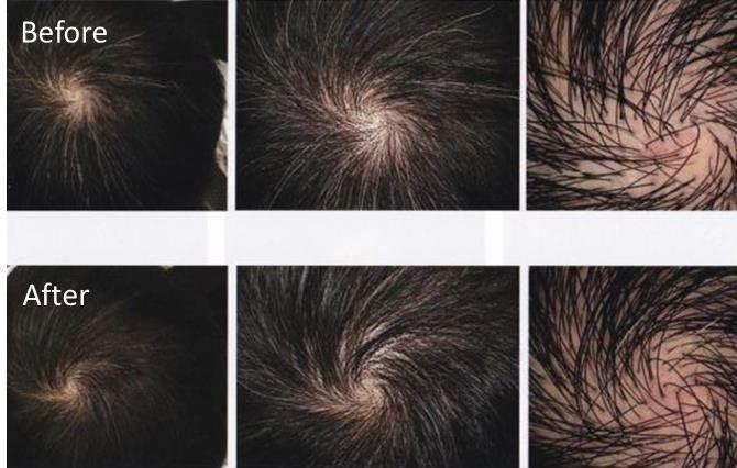 薄毛 治療 発 毛 効果